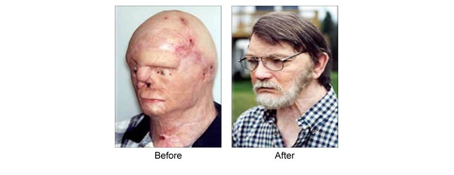 facial prothesis Medical implants are devices or tissues that are placed inside or on the surface of the body many implants are prosthetics, intended to replace missing body parts.